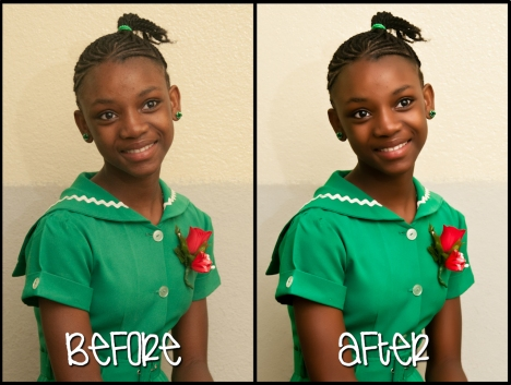 before-after 2